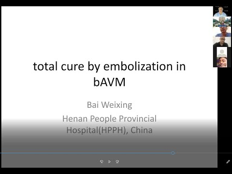 Total Cure by Embolization in bAVM